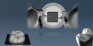 Prothetik · Implantate
