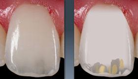Ein natürlicher Zahn liefert Informationen für die Erstellung einer Schichtvorlage