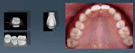 Picture of an extensive restoration of the upper teeth after 6 years
