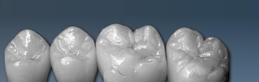 Pressable ceramic incisors