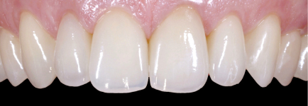 Bonding/Veneers have been attached to each tooth
